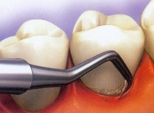 как устранить подвижность зубов при парадонтите