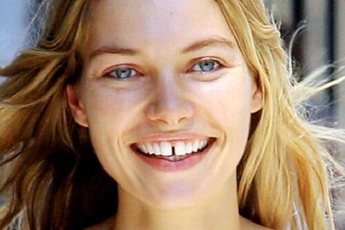 Сонник щербинка между зубами